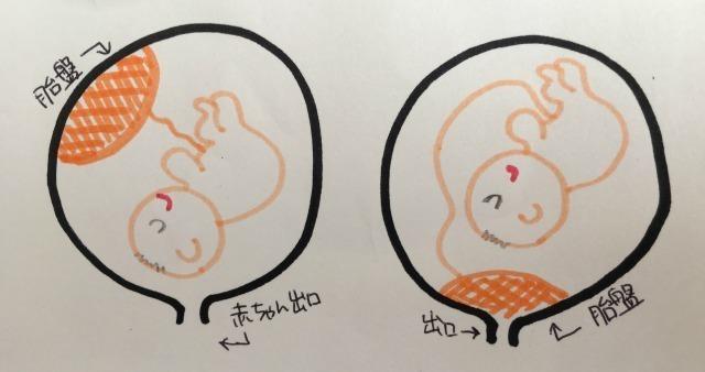 前置胎盤イラスト